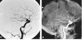 Interventional Radiology & Vascular Radiology